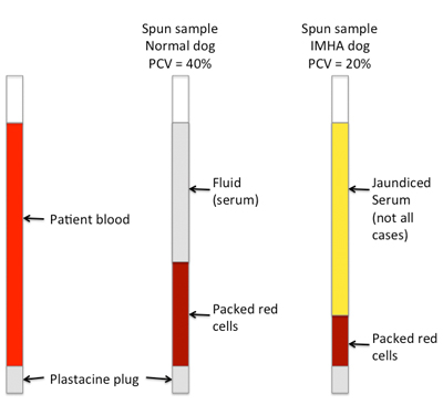 An illustration to show how PCV is measured in capillary tubes