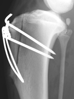 Figure 3. Xray showing transposition of the tibial tuberosity to prevent patellar luxation in a large dog