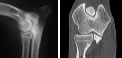 Elbow radiograph (left) and Elbow CT scan(right). These are important tests for detecting elbow dysplasia in dogs