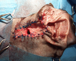 Fig 3: This dog has had a lateral wall resection ear surgery